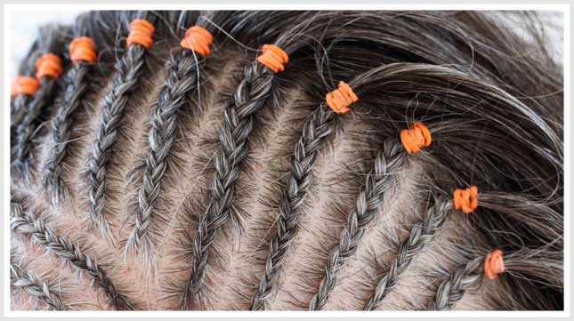 Tractie Alopecia door extensions, braiths of dreadlocks