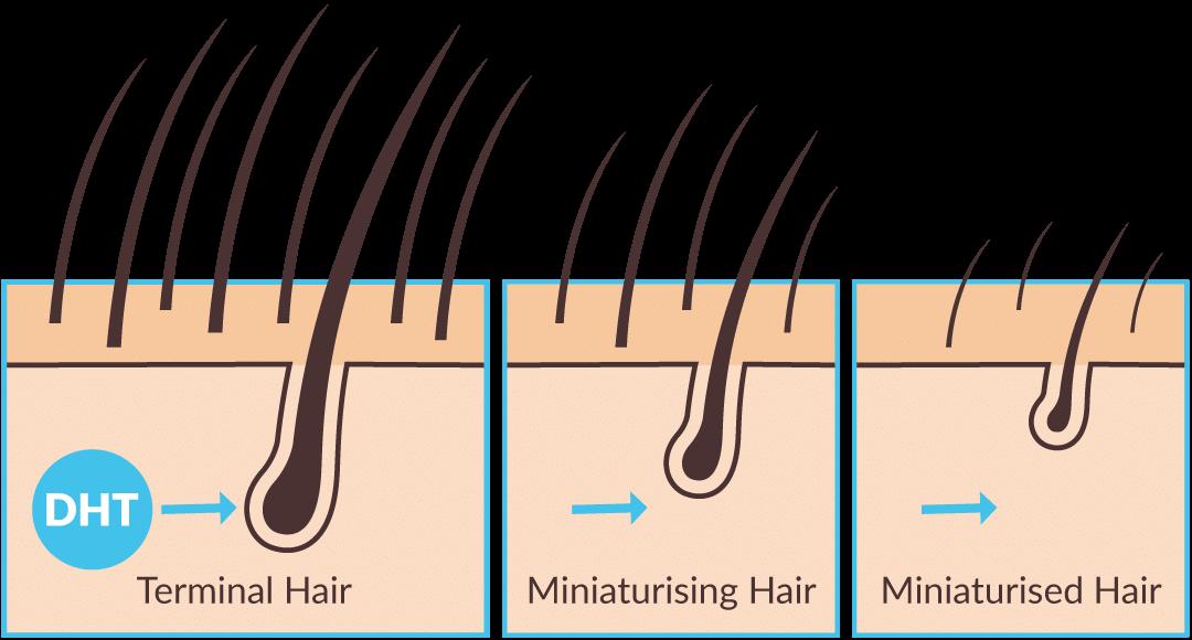 Haaruitval, waaruit bestaat een haar?