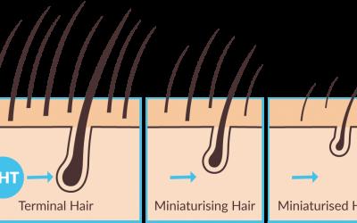 Haartransplantatie en de 8 mythen