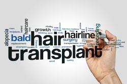 Haartransplantatie met lichaamshaar